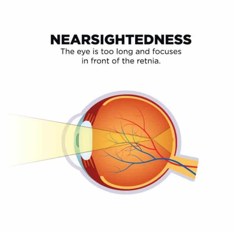 Nearsightedness
